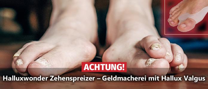 Halluxwonder Zehenspreizer ✘ Hammerpreis gegen Krallenzehen