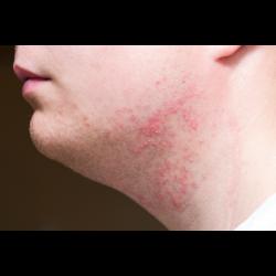 Pickel am Hals durch Rasieren